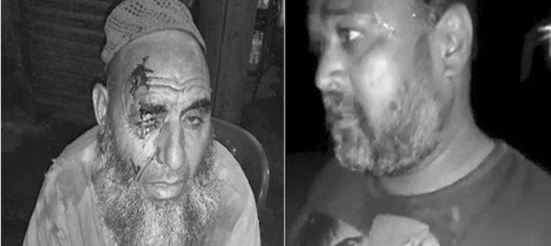 کراچی ،آوارہ کتے ، پولیس افسر سمیت، 12 افراد ، کاٹ لیا، 92 نیوز