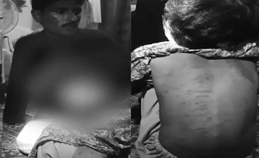 ڈیرہ غازی خان، 7 سالہ بچی پر مالک مکان کا تشدد، وزیراعلیٰ نے رپورٹ طلب کرلی