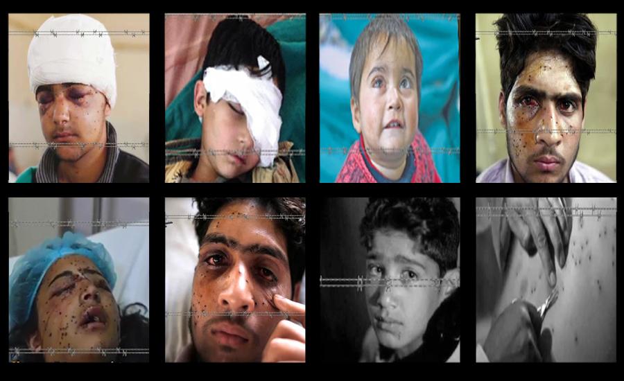 بھارتی فوج کی پیلٹ گنز سے ہزاروں بچے ، خواتین اور نوجوانوں کی آنکھیں بے نور ہو چکیں